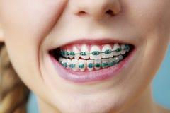 Primer de los dientes de la mujer con los apoyos, cara divertida Foto de archivo libre de regalías