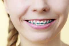 Primer de los dientes de la mujer con los apoyos Fotografía de archivo libre de regalías