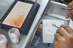 Primer de poner del técnico dental de cerámica a los implantes dentales Imagen de archivo