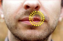 Primer de un herpes común del virus del dolor frío Fotografía de archivo