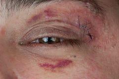 Primer de una herida cosida Imagenes de archivo