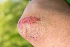 Primer de una herida rasguñada en hombro Fotografía de archivo libre de regalías