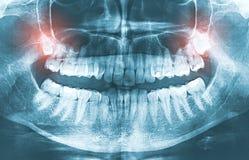 Primer del concepto cada vez mayor del dolor de dientes de sabiduría de la imagen de la radiografía imágenes de archivo libres de regalías