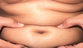 Primer del cuidado superficial abdominal de la mujer y de la belleza gordos, sanos Fotos de archivo libres de regalías