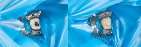 Primer humano de los dientes durante la restauración del relleno El concepto foto de archivo
