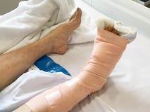 Primer vendado de la pierna paciente de la mujer del asain que miente en el hospital b Imagen de archivo