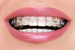 Primo piano ceramico e ganci del metallo sui denti Fotografia Stock
