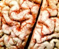 Primo piano del cervello umano Immagini Stock