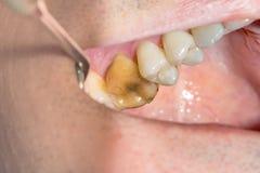 Primo piano del dente guastato carie fotografato Immagini Stock