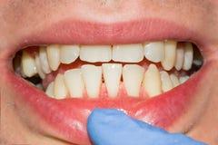 Primo piano del dente guastato carie fotografato Immagine Stock