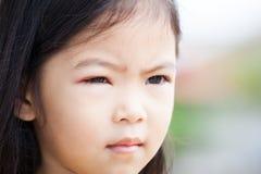 Primo piano del rigonfiamento asiatico dell'occhio della ragazza del bambino dai batteri Immagini Stock