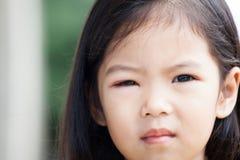Primo piano del rigonfiamento asiatico dell'occhio della ragazza del bambino dai batteri Fotografia Stock