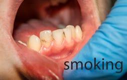 Primo piano del tartaro sugli incisivi anteriori più bassi Igiene dentale dei denti Fotografia Stock Libera da Diritti