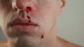 Primo piano dell'emorragia reale del naso dell'uomo video d archivio