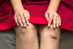 Primo piano della bambina che la tiene ginocchio nocivo danneggiato battuto fotografia stock libera da diritti