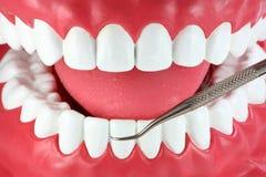 Primo piano della bocca e del selezionamento dentale fotografia stock