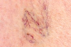 Primo piano della gamba con le vene varicose Fotografia Stock