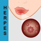 Primo piano delle labbra con herpes freddo, irritato sul labbro Immagine Stock