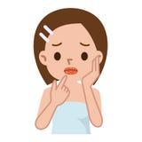 Primo piano delle labbra con herpes freddo, irritato sul labbro Immagini Stock