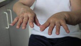 Primo piano delle mani tremolanti nelle grinze di una donna anziana con la malattia di tremore stock footage