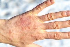 Primo piano dettagliato della mano matura asciutta della donna Fotografia Stock Libera da Diritti