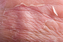 Primo piano di Eczema Fotografie Stock Libere da Diritti