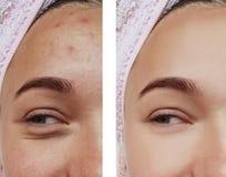 Primo piano di trattamento dell'occhio della ragazza, salute prima e dopo le procedure, acne di rimozione di terapia fotografie stock libere da diritti