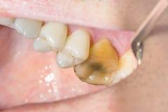 Primo piano di un dente cariato marcio umano nella fase di trattamento fotografia stock libera da diritti