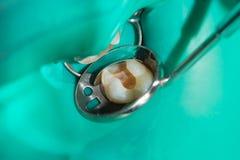 Primo piano di un dente cariato marcio umano nella fase di trattamento Fotografia Stock