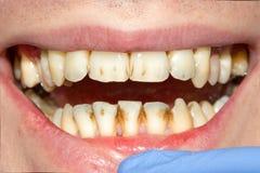 Primo piano di un dente cariato marcio umano nella fase di trattamento immagini stock
