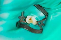 Primo piano di un dente cariato marcio umano nella fase di trattamento fotografie stock libere da diritti