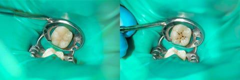 Primo piano di un dente cariato marcio umano nella fase di trattamento in una clinica dentaria fotografie stock