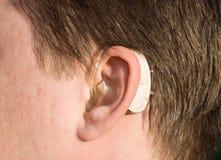 Primo piano di un orecchio dell'uomo con una protesi acustica fotografia stock