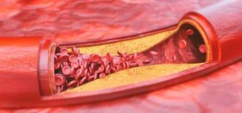 Primo piano di una rappresentazione di aterosclerosi 3D Fotografie Stock
