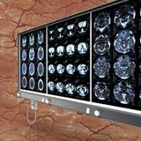 Primo piano di una ricerca di CT con l'illustrazione del cervello 3d Immagine Stock