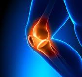 Primo piano doloroso del ginocchio Immagini Stock