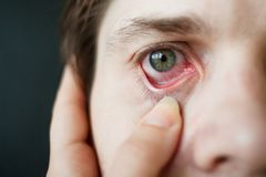 Primo piano rosso dell'occhio degli uomini, affaticamento, problemi con i vasi sanguigni Immagine Stock