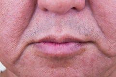 Primo piano sulla pelle cascante della guancia dell'uomo asiatico maturato immagini stock libere da diritti