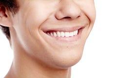 Primo piano a trentadue denti impressionante di sorriso Immagini Stock Libere da Diritti