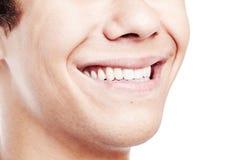 Primo piano a trentadue denti impressionante di sorriso Fotografia Stock Libera da Diritti