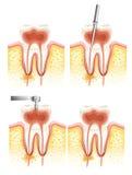 Principale canale dentario royalty illustrazione gratis
