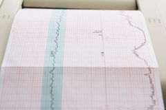 Printing of cardiogram report coming out from Electrocardiograph in labour ward Royalty Free Stock Photo