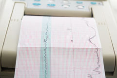 Printing of cardiogram report coming out from Electrocardiograph in labour ward Royalty Free Stock Image