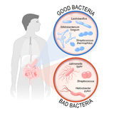 Probiotics. gut flora: Good and Bad bacteria. Probiotics. gut flora: Good Lactobacillus, Bifidobacterium longum, Streptococcus thermophilus and Bad stock illustration