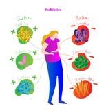 Probiotics konceptualny wektorowy ilustracyjny plakat Medyczny przylepiający etykietkę diagram z kobietą, stylizowanymi bakteriam royalty ilustracja