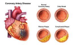 Problème coronaire de coeur avec le cholestérol photos libres de droits