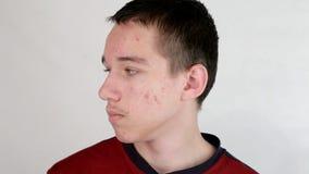 Problème d'acné de puberté banque de vidéos