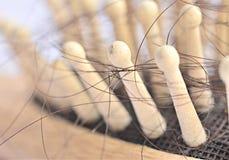 Problème de perte des cheveux photographie stock