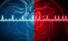 Problème de santé médical de fibrillation auriculaire Images stock