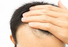 Problème sérieux de perte des cheveux de jeune homme sur le fond blanc image libre de droits